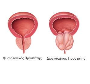 enlargedprostate el